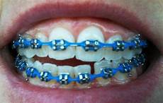 Light Blue Braces Power Chain Braces At 37 Week Fourteen On With The Powerchain