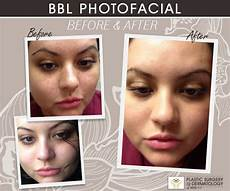 bbl photofacial new york bbl before and after