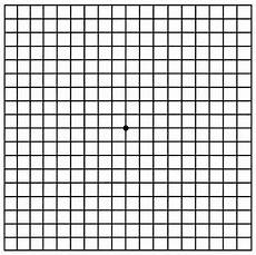 Amd Eye Chart Macular Degeneration Retinal Services Cataract Amp Laser