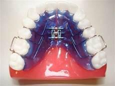 apparecchio mobile apparecchio dentale ortodonzia dott marco dormi