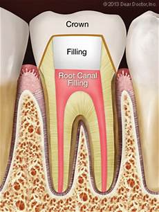 Root Canal Filling Material Endodontic Root Canal Treatment Step By Step
