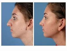 rhinoplasty what to expect before and after a nose