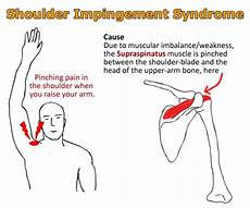 Arm Diagnosis Chart Shoulder Impingement What You Need To Know Physioreza