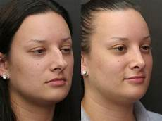 rhinoplasty before after photos worcester ma