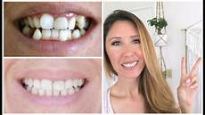 invisalign 2 year update before after pics