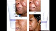 rodan fields unblemish regimen before and after picture