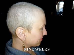 Rate Of Hair Growth After Chemo | hair growth after chemotherapy hot girls wallpaper