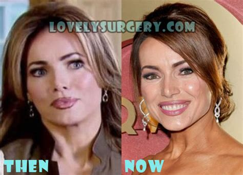 what is lisa robertson going to do after qvc lisa robertson plastic surgery before and after photo