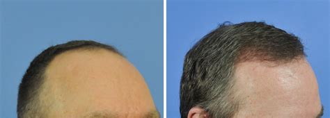 53 year old typical hairline male 53 years old 1609 fue gabel hair restoration