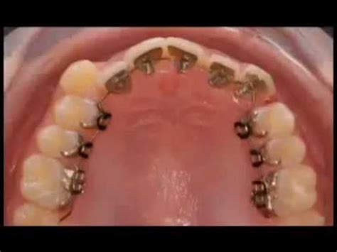 apparecchio interno denti guarda come l apparecchio incognito muove i tuoi denti