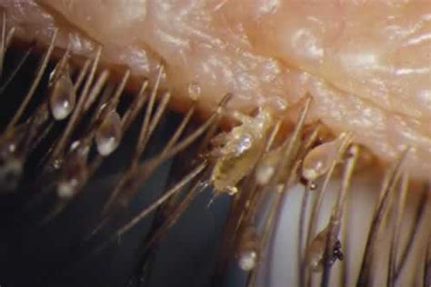 pubic hair comb pubic lice symptoms causes treatment pictures