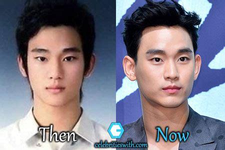 kim soo hyun surgery kim soo hyun plastic surgery eyelid surgery rumor before