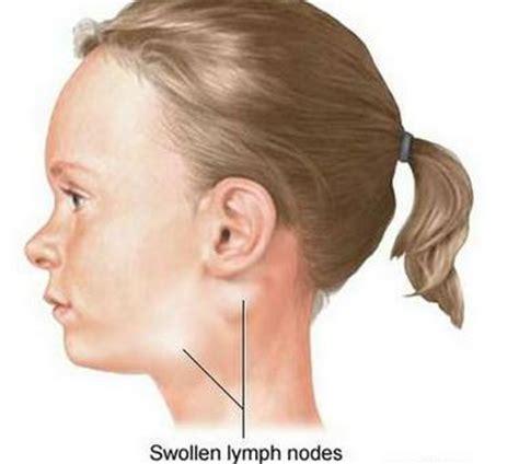 swollen lymph nodes neck swollen glands in neck symptoms causes treatment