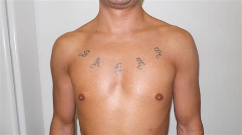 plastic surgery tattoo removal before and after results dr simon laser