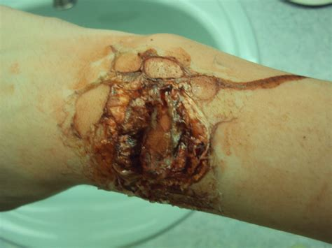 Infection via gash by Art Squid on DeviantArt