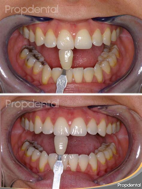 blanquear dientes en casa precio blanqueamiento dental barcelona
