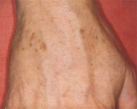 Chocolate Spots by Brown Spots Age Spots Liver Spots Groot Dermasurgery