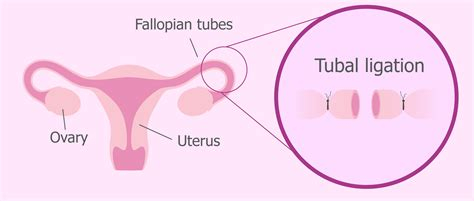 chances of getting pregnant after c section chances of pregnancy after tubal ligation during c section