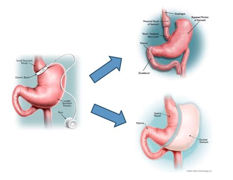 gastric bypass diagram diagram of stomach after gastric bypass choice image how