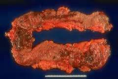 pathology chapter 17 review questions gastrointestinal