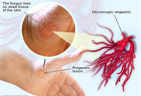 can you get ringworm from a ringworm treatment pictures causes and symptoms