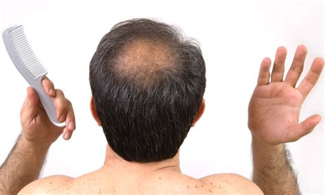 a man balding at the crownwhat is the best hair style for best treatment for female thinning hair in dubai uae