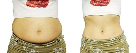 10 Reasons You Might Be Bloated And What To Do by 10 Reasons Why You May Be Belly Bloat