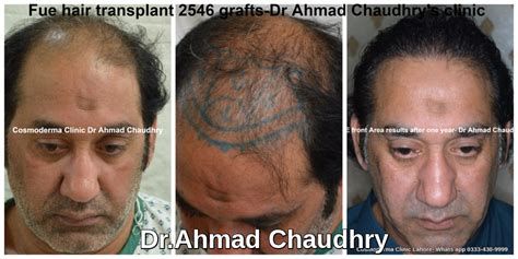 best hair transplant doctors in america hair transplant clinic lahore pakistan fue