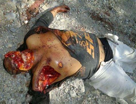 imagenes fuertes de gente decapitada fotograf 237 as de dos desollado en la cara y descarnado por
