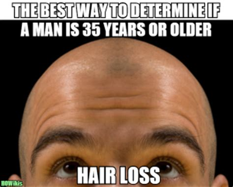 Baldness Meme - bald man jokes kappit