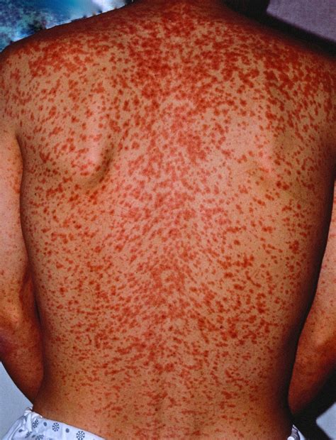 measles causes rash symptoms signs measles treatment