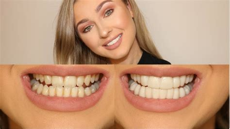 a1 bentley before and after secret veneers honest no bullsh t review youtube