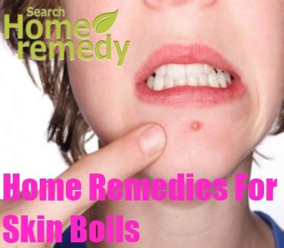 Home Remedies For Skin Boils - Natural Treatments, Cure ... How To Treat Boils On Buttocks At Home