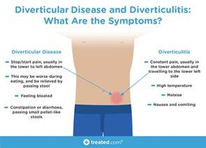 Does Diverticulitis Cause Blood In Stool by Diverticulitis And Ibs Is There A Link