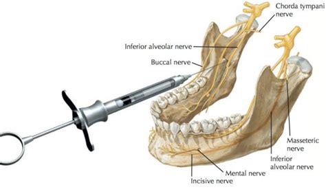 standard inferior alveolar nerve block youtube