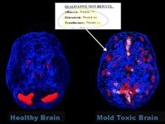 Detox Mri Contrast by 1000 Images About Mold Toxicity Cirs On Mold