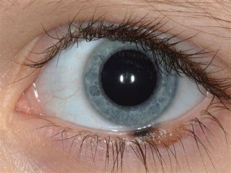 dolore all angolo interno dell occhio epitelioma occhio