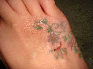 tca peel tattoo removal removal using tca pictures of tca reactions and