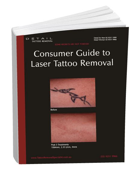 hindsight tattoo removal 100 removal guaranteed removal