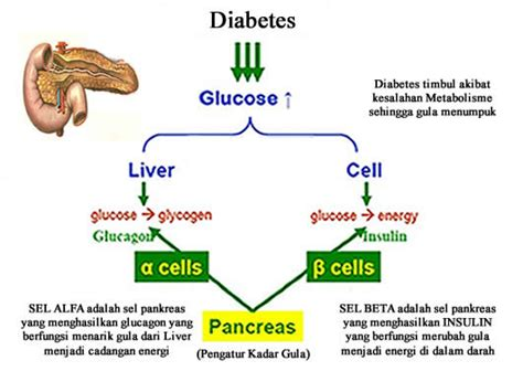 gejala penyebab penyakit stroke dan cara penyembuhan penyebab utama penyakit diabetes atau kencing manis