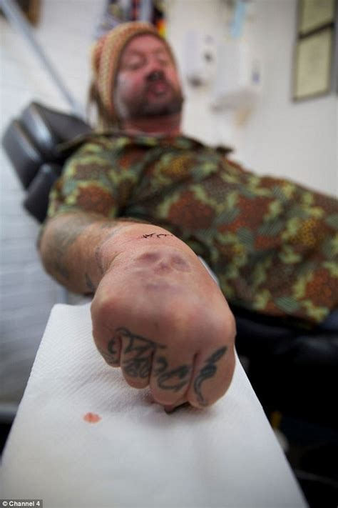 Man has a 3D SKULL implanted into his hand as an