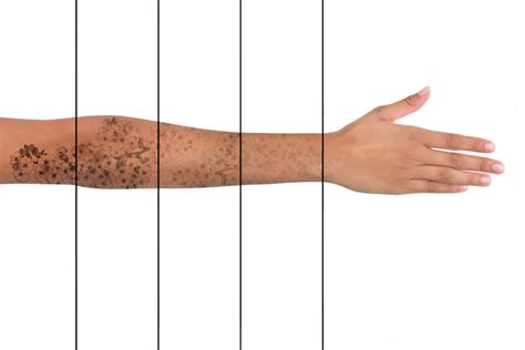 laser tattoo removal perth laser removal perth safe painless dr robert