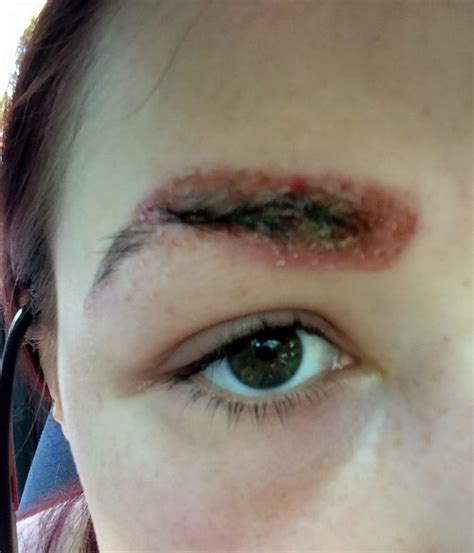 tattoo eyebrows itchy teen scarred after eyebrow tint treatment left her looking