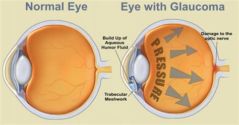 best glaucoma treatment best guide on glaucoma and how to avoid permanent loss of