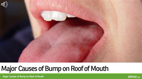 Is A Little Bump On The Top Of Hair Instyle In 2015 | major causes of bump on roof of mouth youtube
