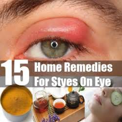 home remedies for stye stye remedies gallery