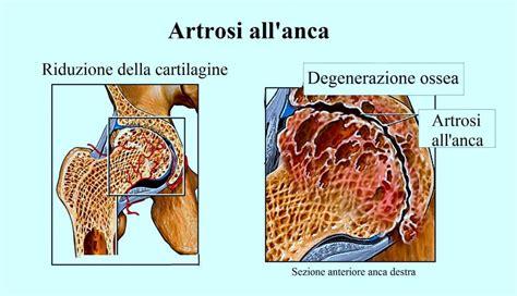 dolore muscolo interno coscia dolore all inguine destro o sinistro e gamba coscia