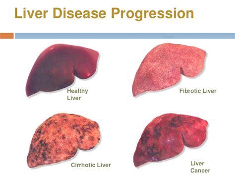 Detoxing Liver Heptiitis C by Image Gallery Hepatitis B Liver