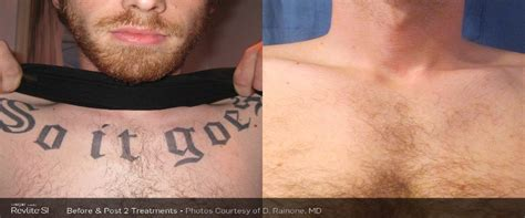 tattoo removal wollongong laser removal service in wollongong for remorseful