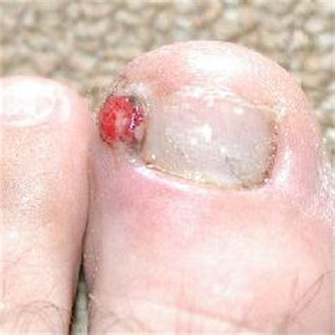 treating an infected ingrown toenail infobarrel ingrown toenail symptoms infections treatments and